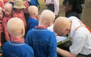 Albinonoidian boys